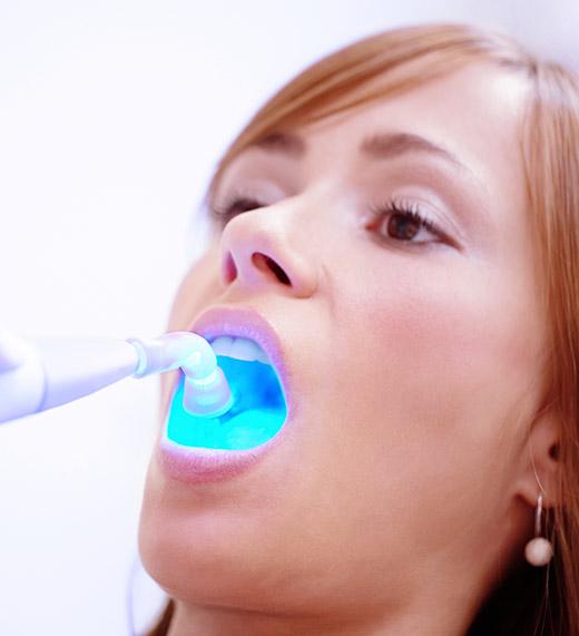 Florida Teeth Cleaning