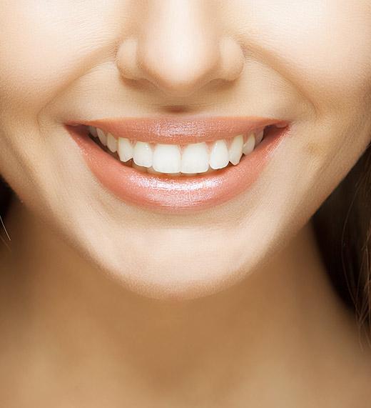 Best Dental Implants in Winter park
